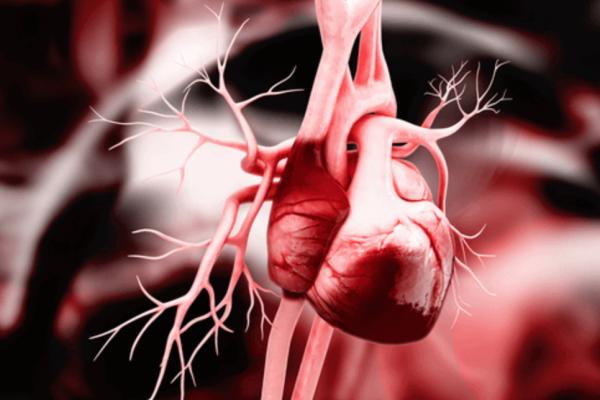 Сердечная тампонада - Телекардиолог