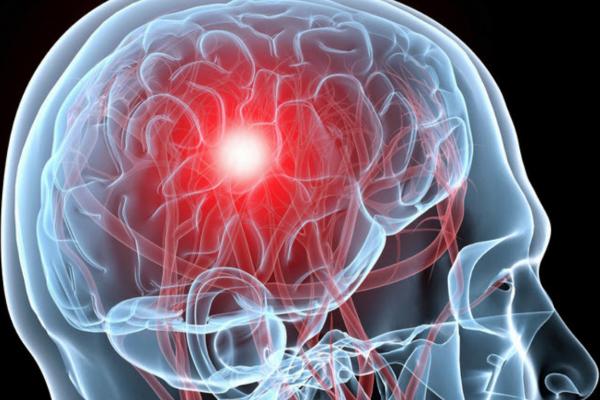Цереброваскулярная болезнь - Телекардиолог