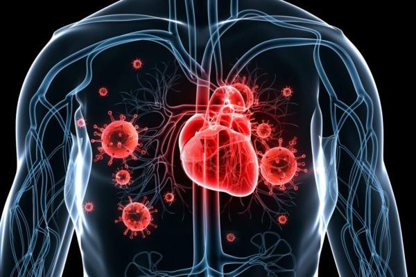 Инфекционный эндокардит - Телекардиолог